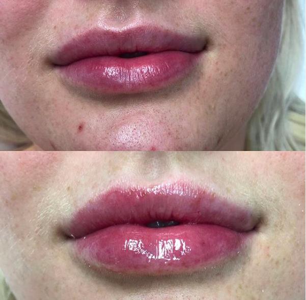Lip Filler - Half Syringe