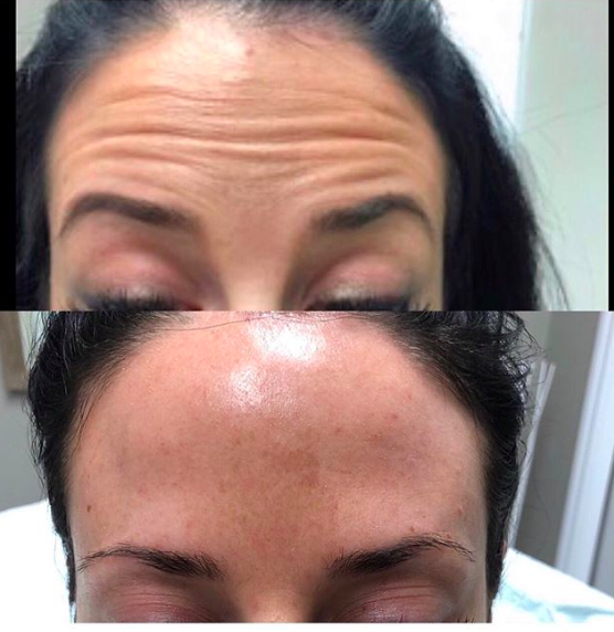 Frontalis - Botox/Dysport