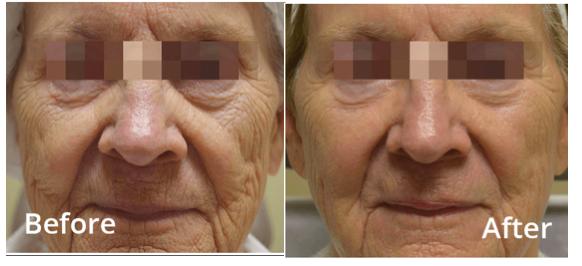 Full Face Skin Tightening