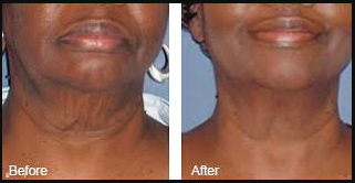 Neck and Jaw Skin Tightening