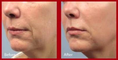 Lower Face Skin Tightening