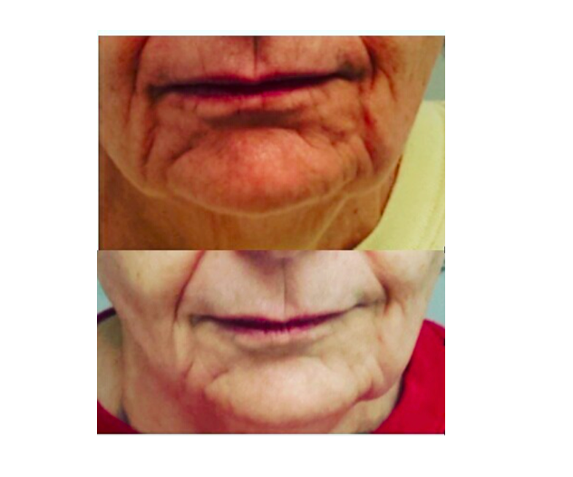 Lower Face RF Skin Tightening