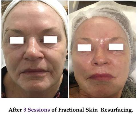 frac skin resur bef & aft.PNG