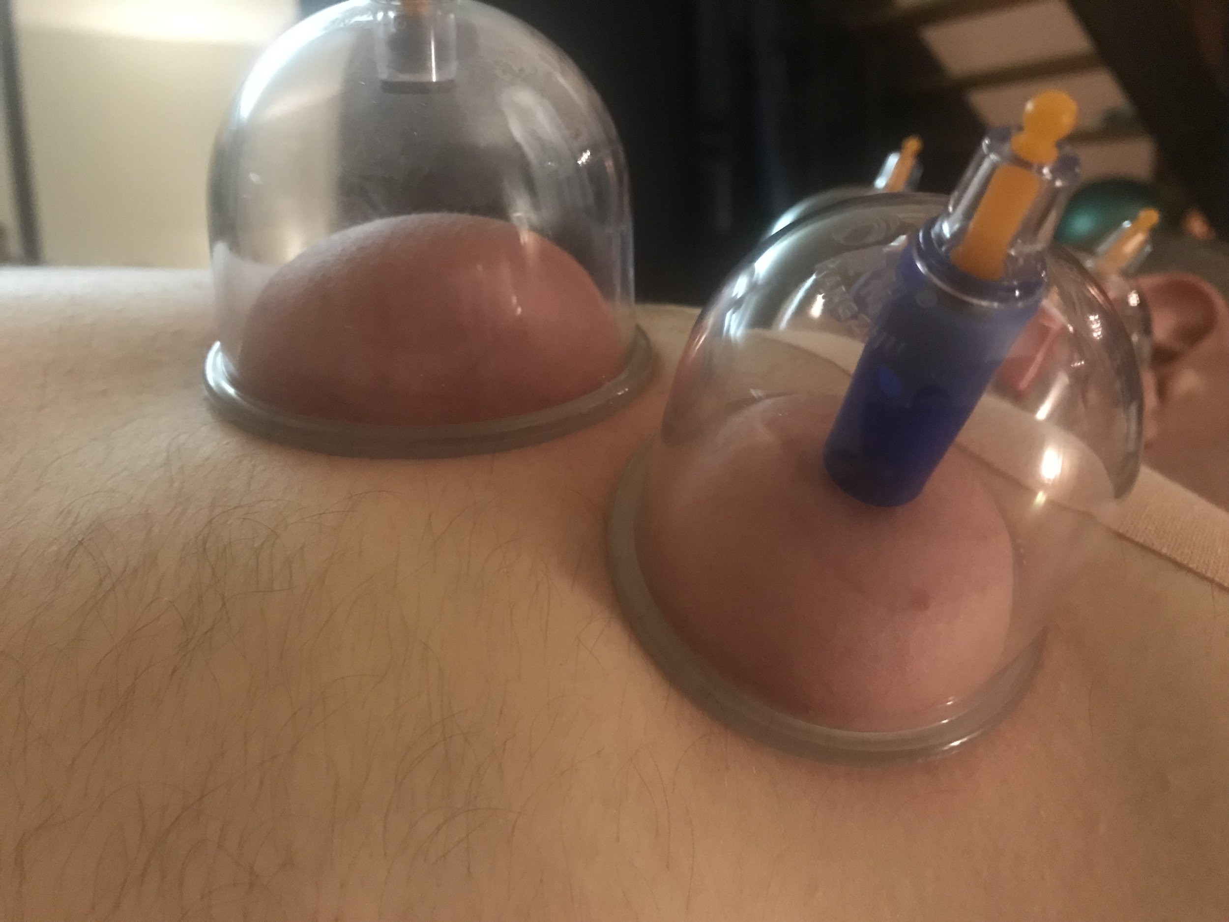 Cupping - Chronic Pain