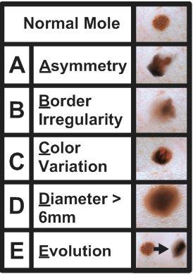 ABCDEs of melanoma.JPG