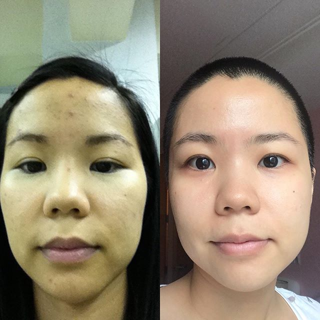 Skincare works, people! ⠀⠀⠀⠀⠀⠀⠀⠀⠀ Left-October 2010, I was under a lot of stress from launching a startup. I was using natural skincare brands but not double cleansing, acid toning, using SPF regularly. I also wasn't using any actives or hydration products. Aside from my breakouts, I had dehydrated yet oily skin and texture and tone issues. ⠀⠀⠀⠀⠀⠀⠀⠀⠀ Right-July 2019. I've been properly schooled by @carolinehirons, @fiddysnails, @danutamieloch, @intothegloss, @sokoglam and countless others. I've added all the mentioned steps that I wasn't doing. Most importantly, I'm a lot more relaxed and calm overall. ⠀⠀⠀⠀⠀⠀⠀⠀⠀ I used to be skeptical at the beauty industry with all the things being marketed to me. I believed in minimalism in skincare. That the skin has innate intelligence that would balance itself and by interfering with it as little as possible your skin will naturally become beautiful and healthy. ⠀⠀⠀⠀⠀⠀⠀⠀⠀ I've since learned through education and trial and error that it takes a concerted effort to arrive at the skin on the right. ⠀⠀⠀⠀⠀⠀⠀⠀⠀ In the grand scheme of things, your skin's appearance really doesn't matter, your character and contribution to the world does. That said, engaging in skincare is like a fun, sensory, science experiment that allows you to exert some control over your life even if it's on something as shallow as your skin. ⠀⠀⠀⠀⠀⠀⠀⠀⠀ With the internet for information and brands like @deciem, @theinkeylist, @cosrx and @stratiaskin making quality products at affordable prices, good skin is now fairly accessible to a lot of people. I hope this post inspires you to revisit your skincare routine and see if it's working the best for you.