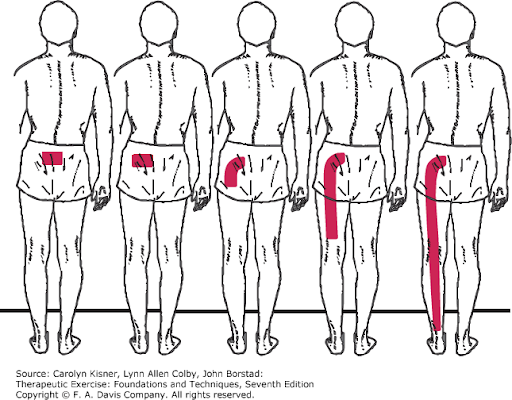 Sciatica Pain Treatment - Randall Pain Management, PLLLC