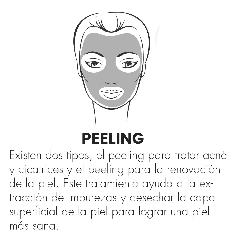 peeling.png
