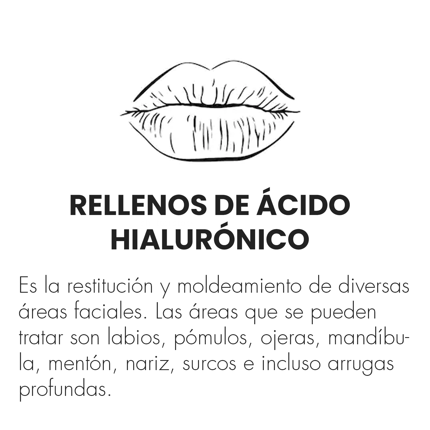 rellenos.png