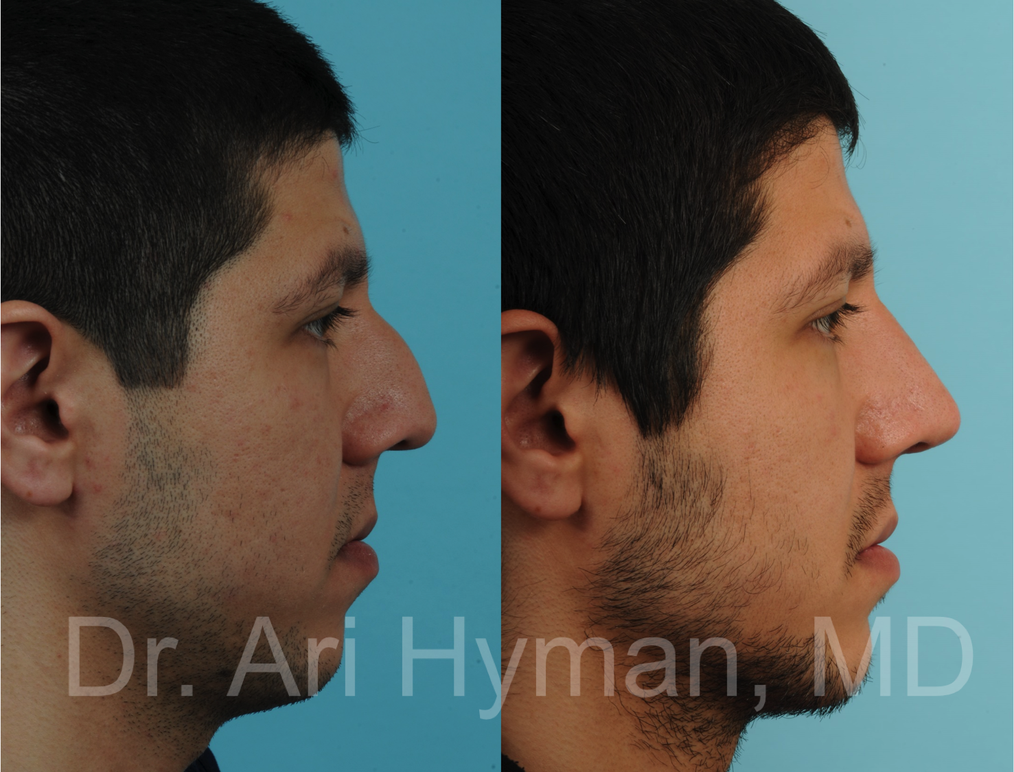 Rhinoplasty Case 1