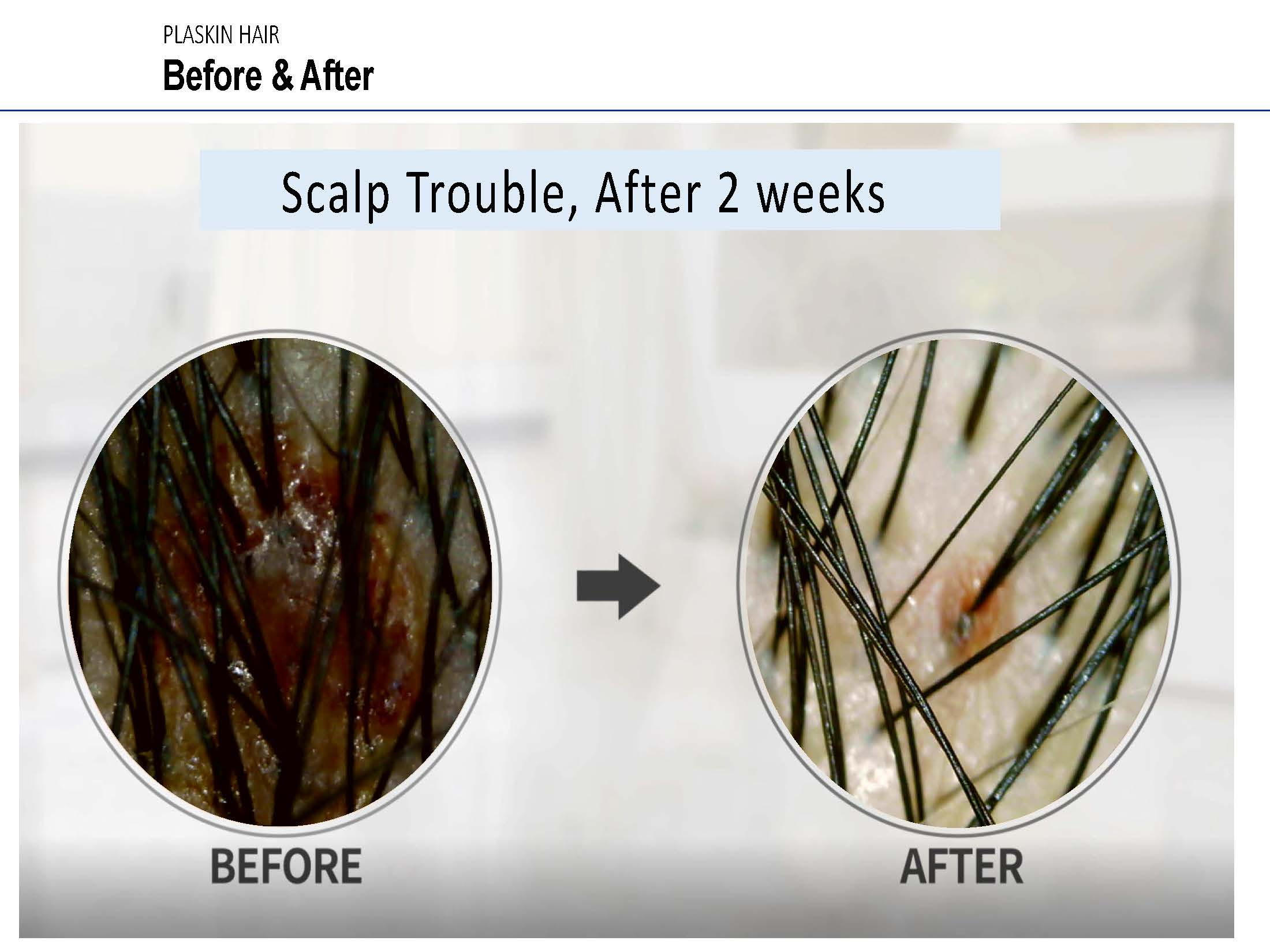 scalp trouble examples__Page_15.jpg