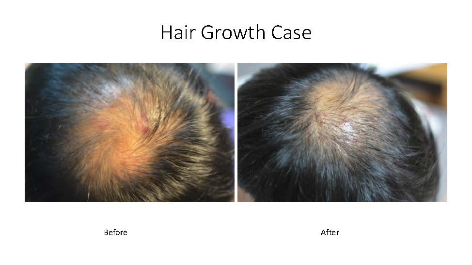 Hair growth examples_Page_2.jpg