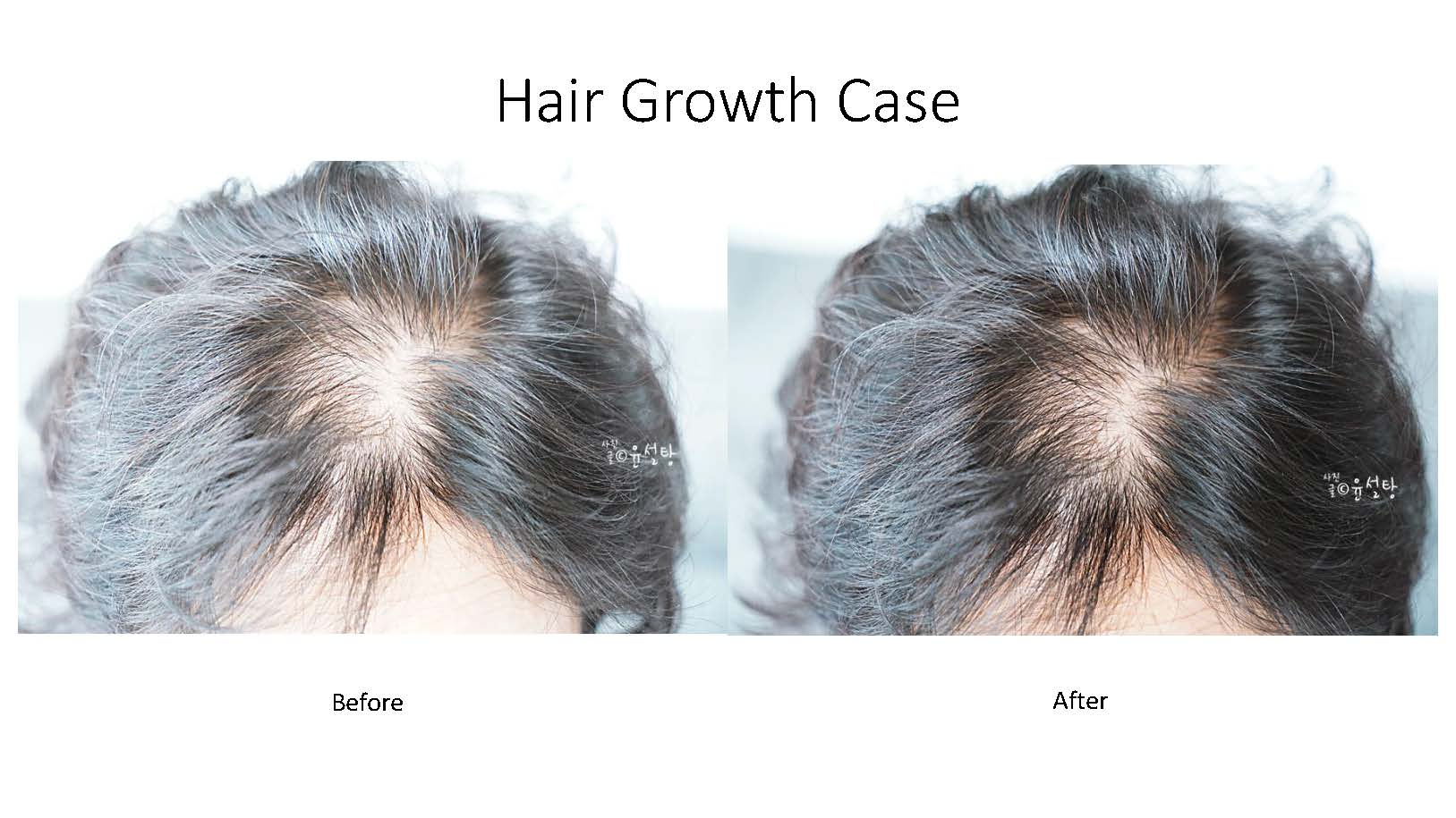 Hair growth examples_Page_1.jpg