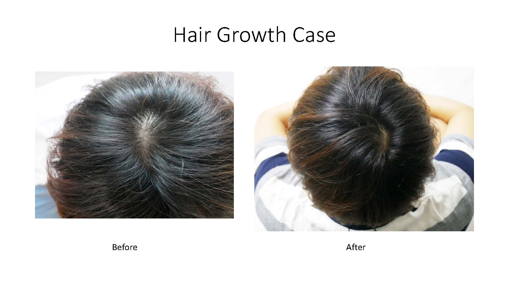 Hair growth examples_Page_3.jpg