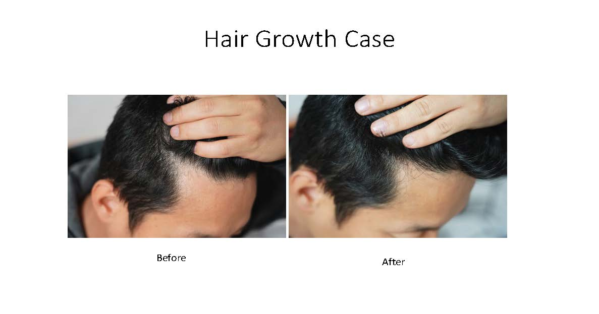 Hair growth examples_Page_4.jpg