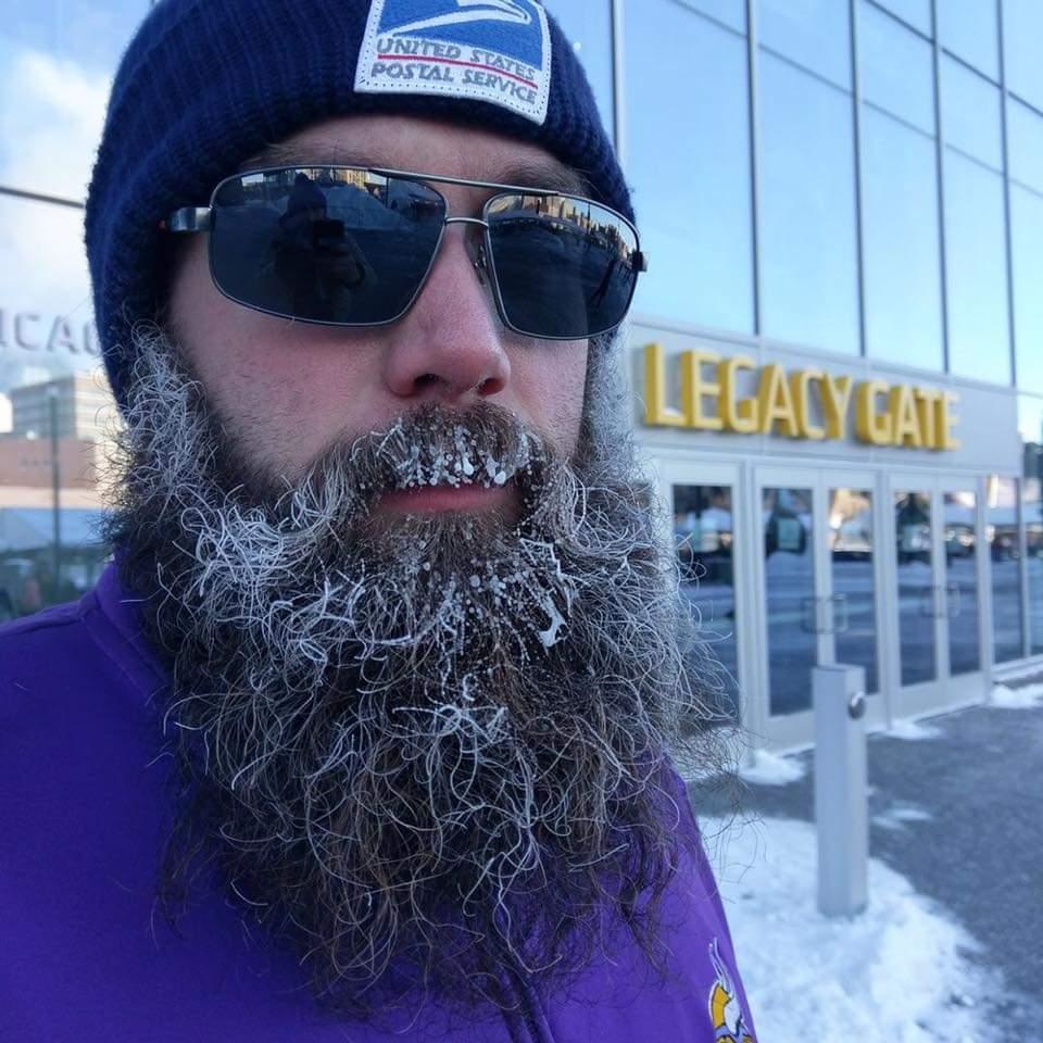 That's frozen pee in his beard FYI.