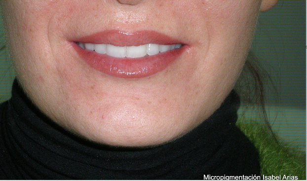 A beautiful pigmentation is one that allows you to go with your face washed and look good. A natural and well-defined lip opens a field of possibilities to take from a shine to a red whenever you want.