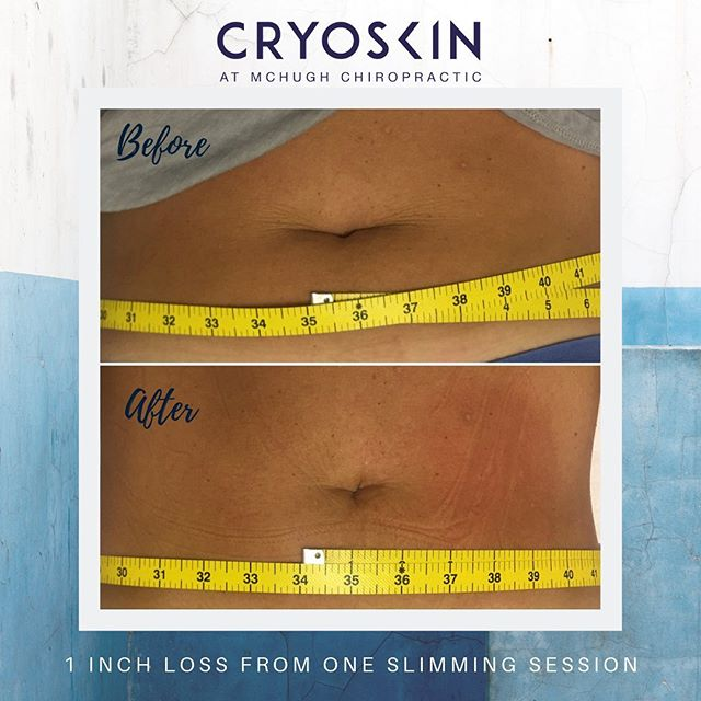Wow!!! 👌Check out the difference around the belly button. One inch fat loss after one cryoskin slimming session. 30 minutes to a new you.  ___  Results are immediate and will only continue to improve over the next few weeks.  Cryoskin is a safe and non-invasive treatment to target unwanted fat, cellulite and wrinkles.  ___  Call Sarah today to schedule your free consultation! 📞 904.297.5350  #cryoskin #cryoslimming #byebyefatcells #bodygoals #treatyourself #mchughchiropractic