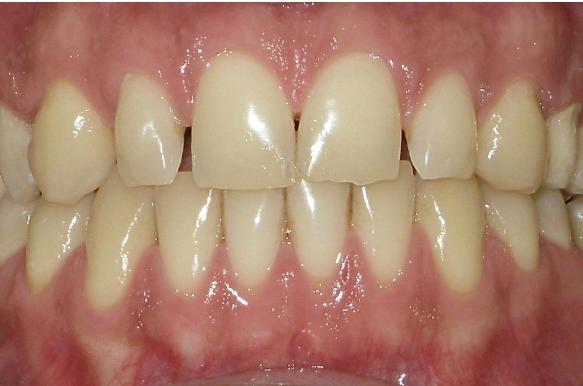Full Mouth Rehabilitation Before