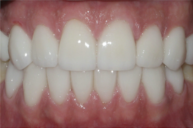 Full Mouth Rehabilitation After