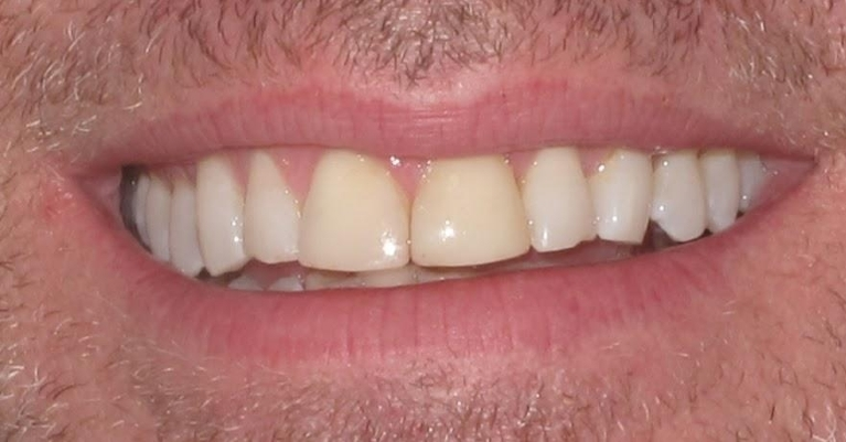 Front Teeth Crowns Before