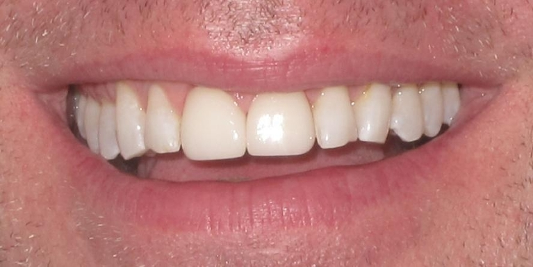 Front Teeth Crowns After