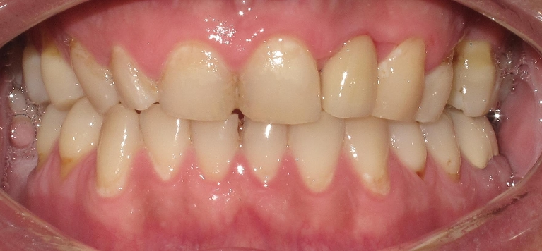 Anterior Single Tooth Implant After