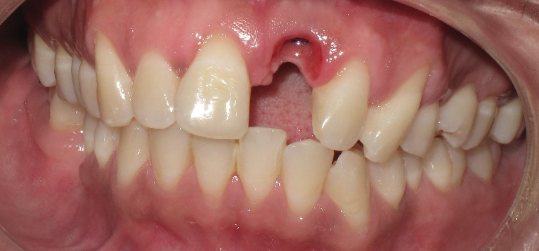 Anterior Single Tooth Implant Before