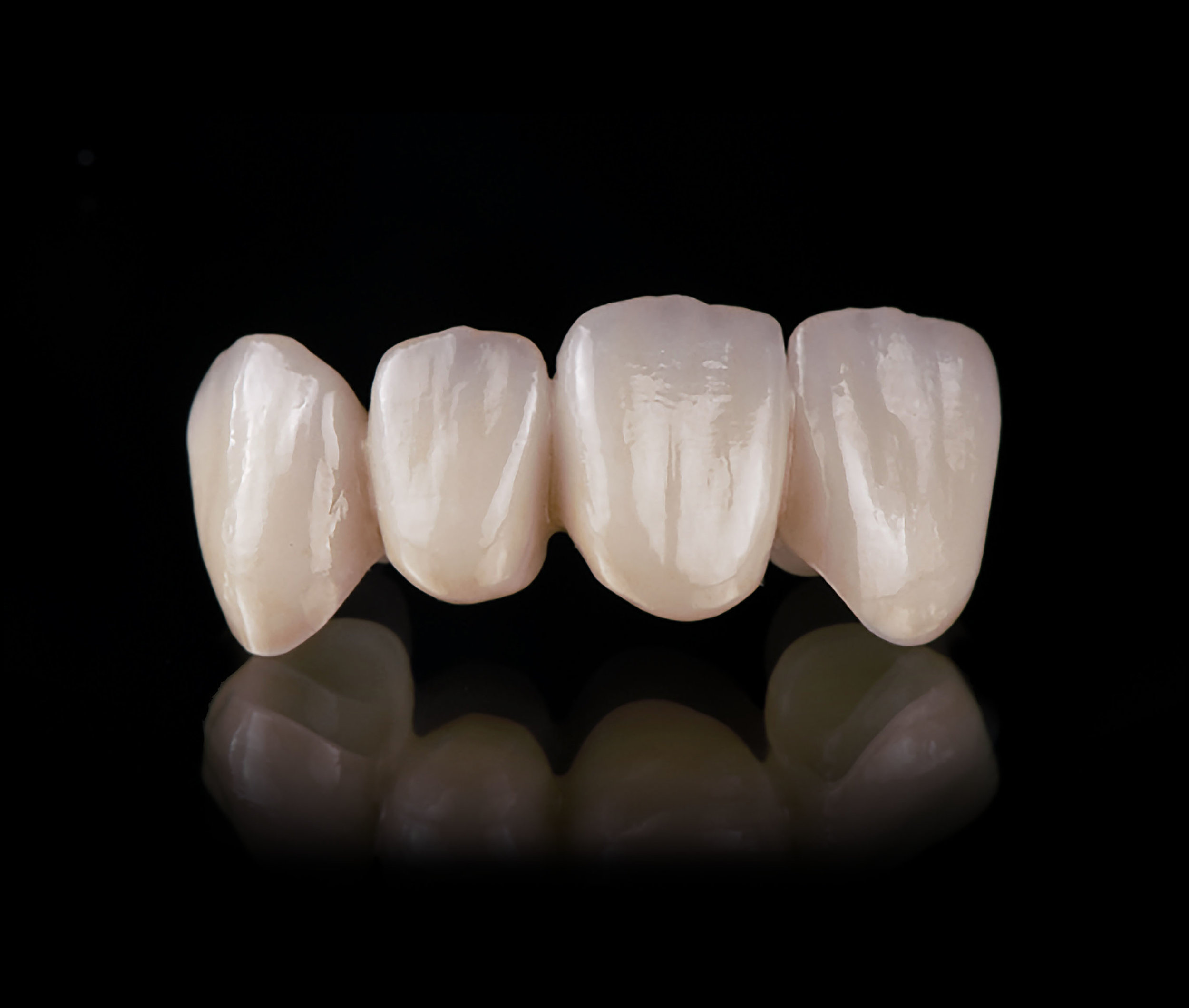 Unprecedented Blend of Esthetics & Strength - Honoring MicroDental's legacy of esthetics and innovation, our team is proud to introduce the next generation of all-ceramics, MicroDental IPS e.max ZirCAD Prime.