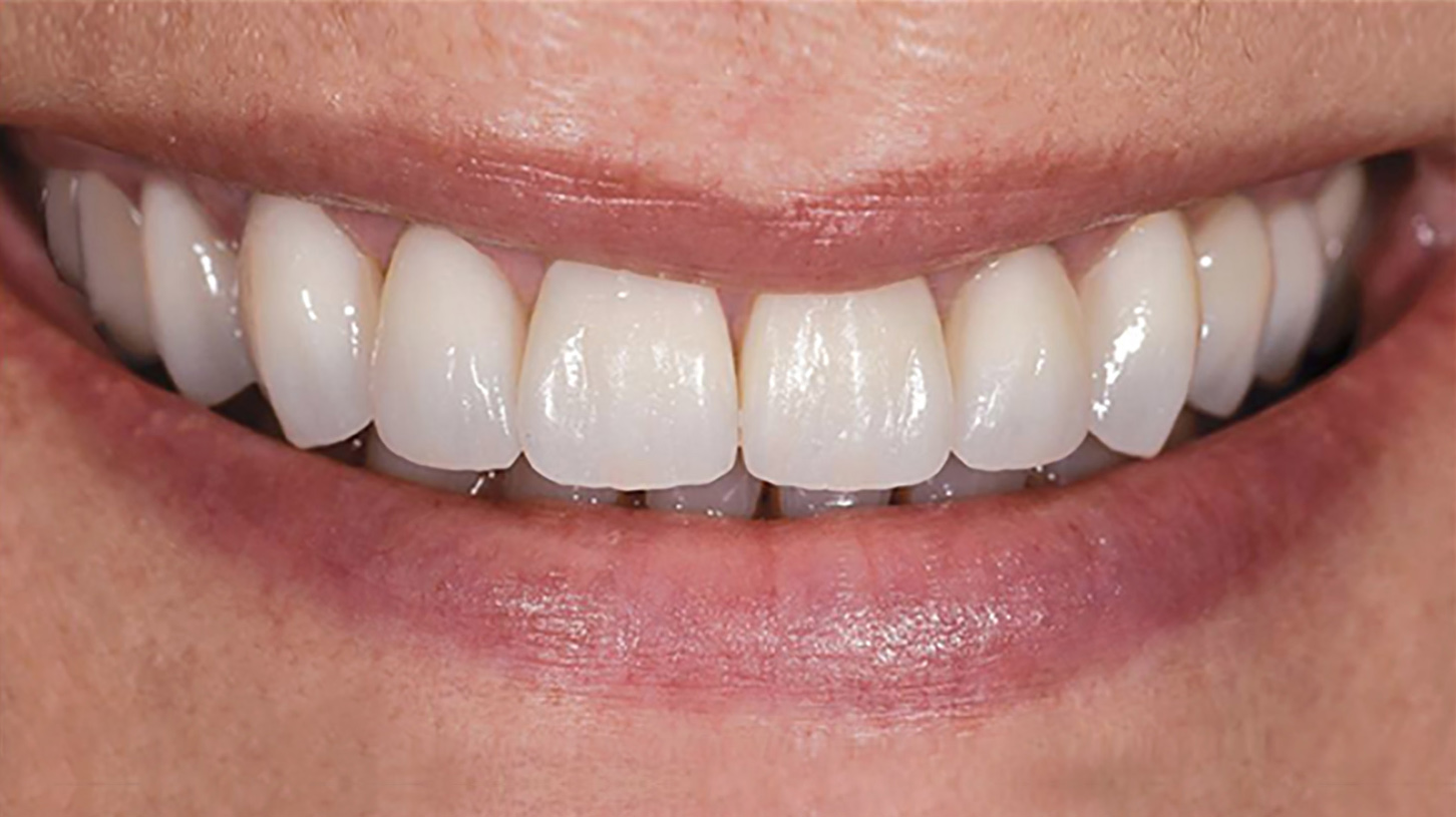 A Seamless Progression of Shade & Translucency - Esthetics: Comparable to glass-ceramicsMaterial: Oxide ceramicIndications: Single posterior & anterior crowns, to 14-unit bridgesFlexural strength: 1200 MPaPlacement: Conventional cementationPreparation: 0.8mm for anterior and 1.0mm for posteriors