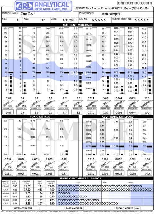 ARL Hair Tissue Mineral Analysis Sample.