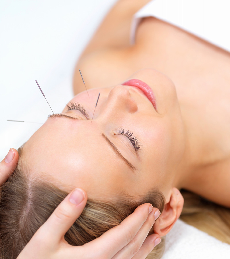 woman getting acupuncture at Denver wellness clinic