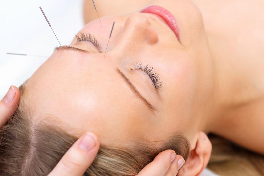 Woman receiving Wakefield Technique facial rejuvenation acupuncture