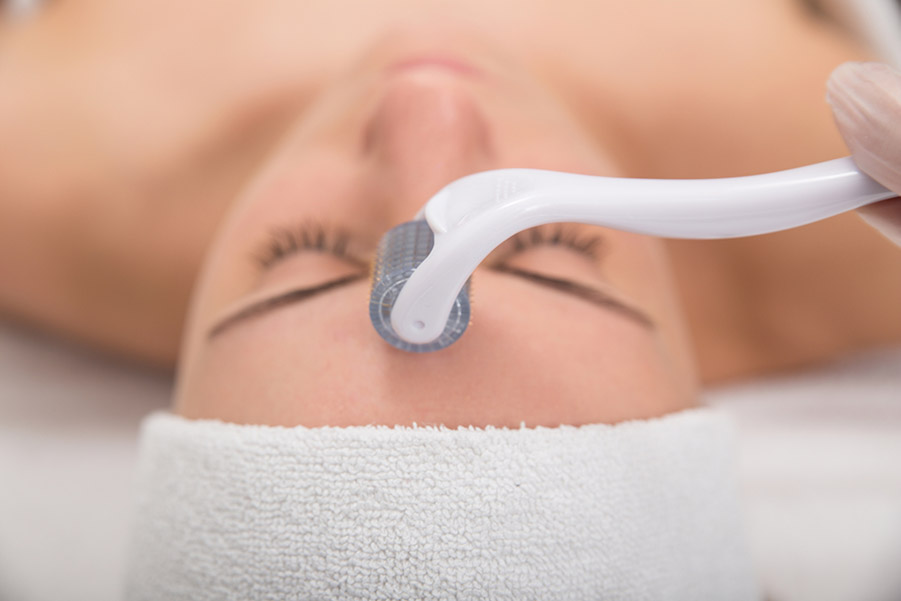 Patient receiving integrated acu-microneedling treatment during acupuncture