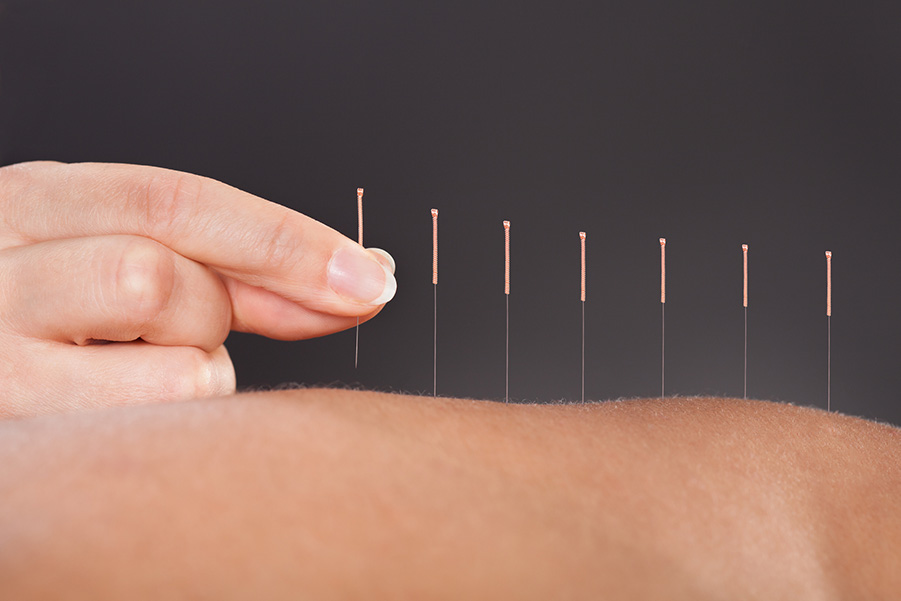 patient receiving dry needling from trained acupuncturist