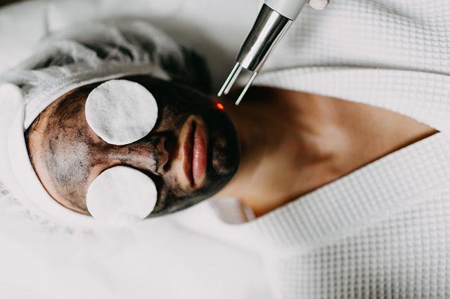 Das Carbon Laser Peeling – auch Hollywood ⭐️ Peeling genannt – wird vor allem bei Hautproblemen wie Akne, vergrößerten Poren, Unregelmäßigkeiten in der Haut, Hauverfärbungen und Mitessern eingesetzt.  Deshalb schwören die Stars und Promis in Hollywood darauf – das Peeling verspricht sofortige Wirkung und lässt die Haut in neuem Glanz strahlen. Dabei ist der Verjüngungs-Effekt umso größer und effektiver.  #realbeauty #cosmetics #loveyourface #dermacare #skincare #lasertechnologies #dermalaser #professionals #influencer #lifestyle #skin #bloggervienna #viennacosmetics