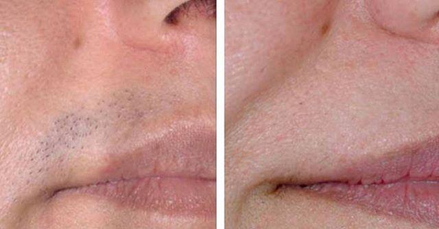 Haarentfernung im Gesicht, kein Problem für uns!⠀ ⠀ Frauen kennen das, die Moustache, die keine haben will. Aber auch ihr liebe Männer - eure Bartkonturen können jetzt immer gepflegt und sharp aussehen.⠀ ⠀ #realbeauty #haarentfernung #hairremoval #dermalaser #dermalaserspecialist #professional #asclepion #lasergeräte #ipl #diodenlaser #MediostarXL #dauerhaftehaarentfernung #cosmetics #RealBeautyVienna #blogger #lifestyle⠀