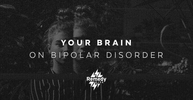 Your Brain on Bipolar Disorder