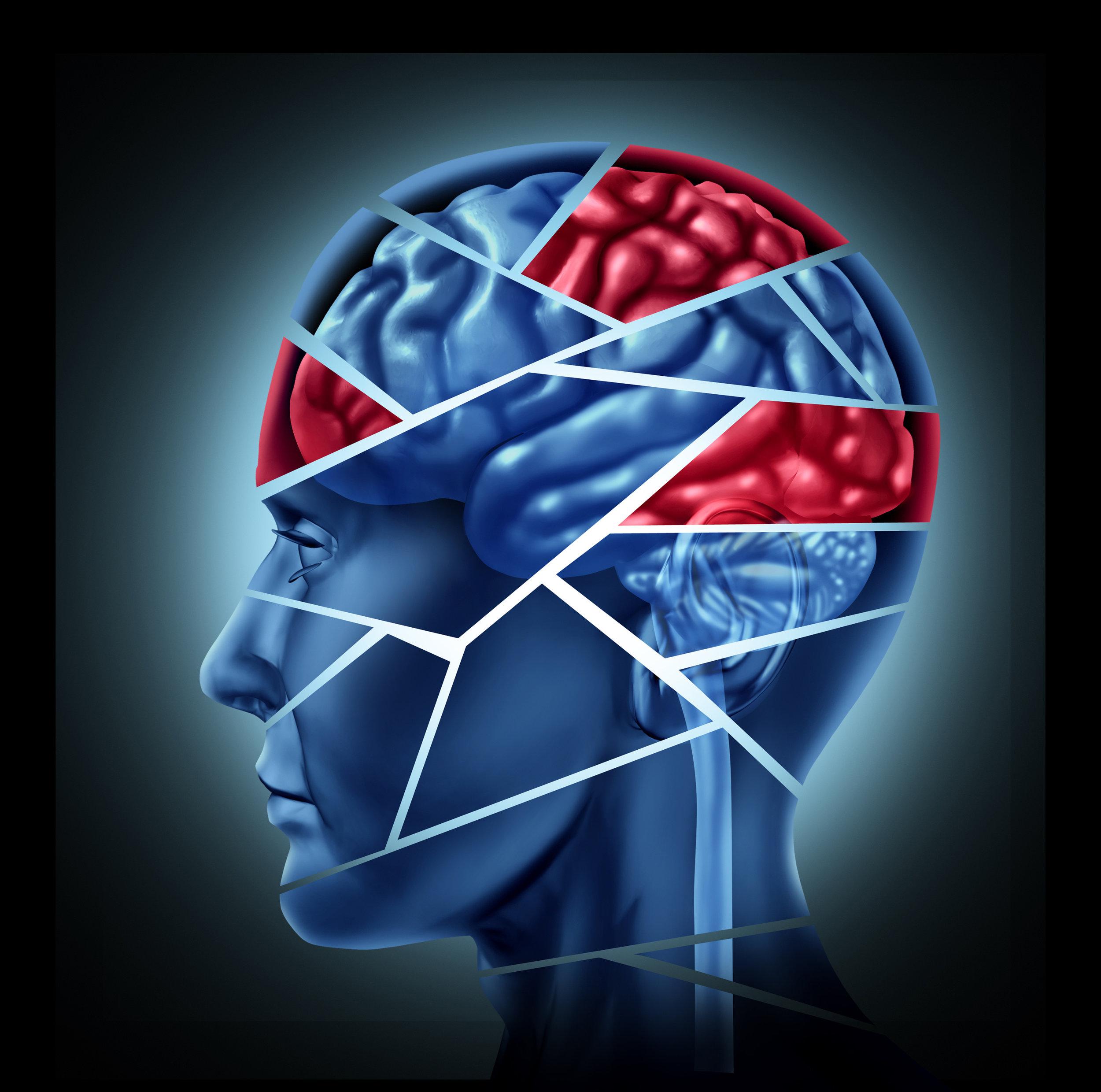 Adobe_Brain Injury 5.jpeg