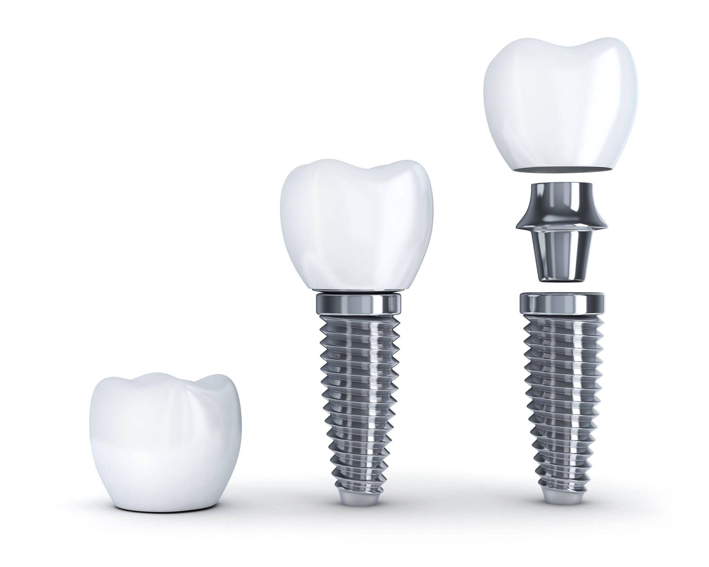 Dental Implants at Eastlake Center for Implants and Restorative Dentistry