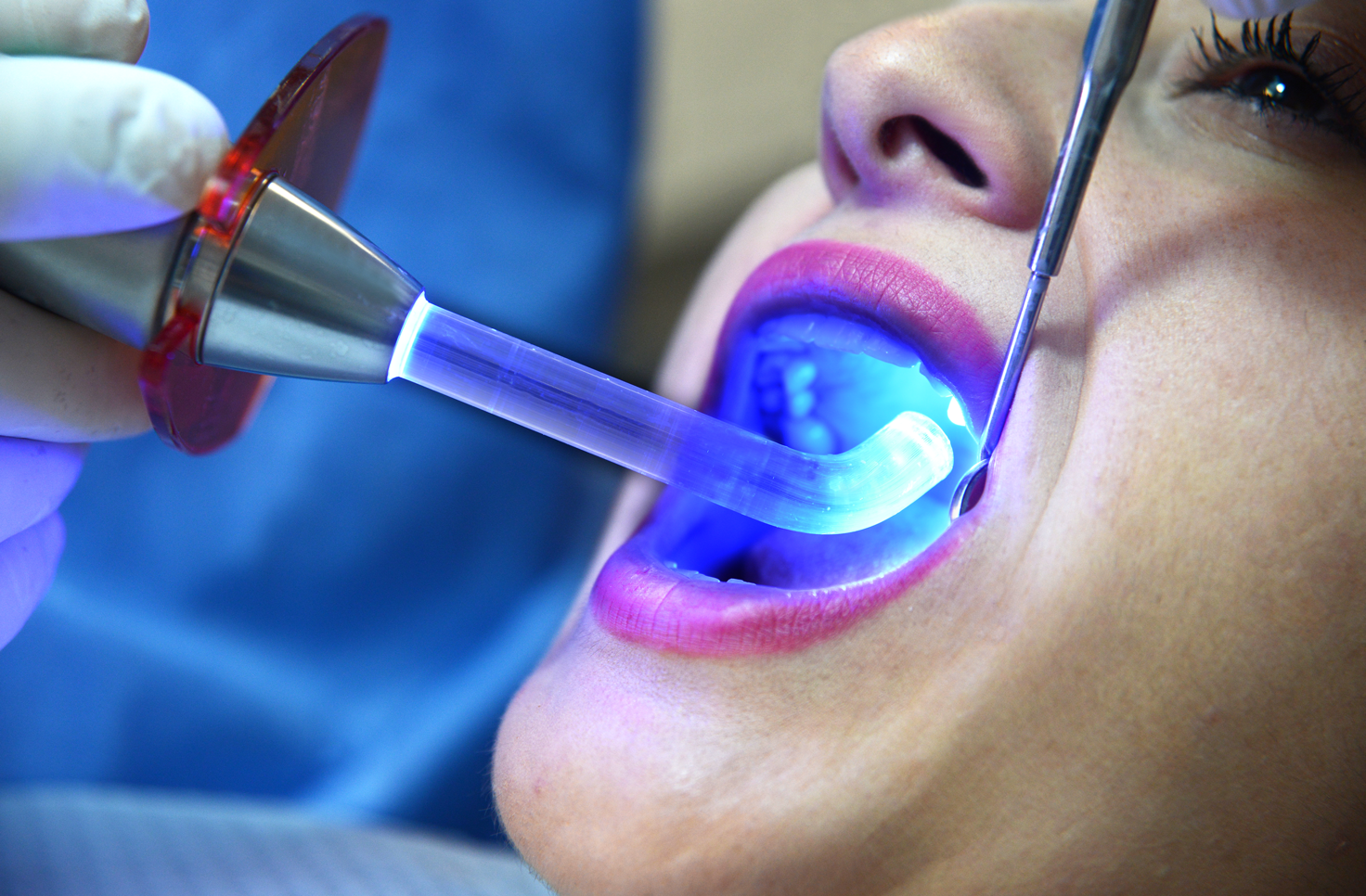 Onlays at Eastlake Center for Implants and Restorative Dentis  try