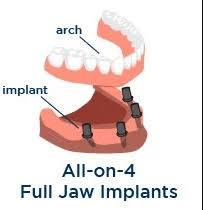 all-on-4 full jaw dental implant denture