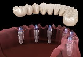 dental implant solutions for multiple teeth
