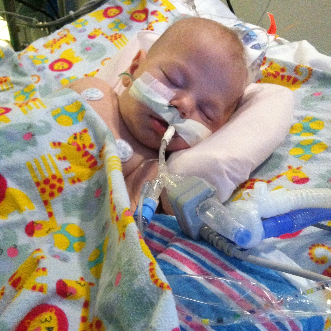 Silas Asleep with Ventilator | Heart Transplant Story