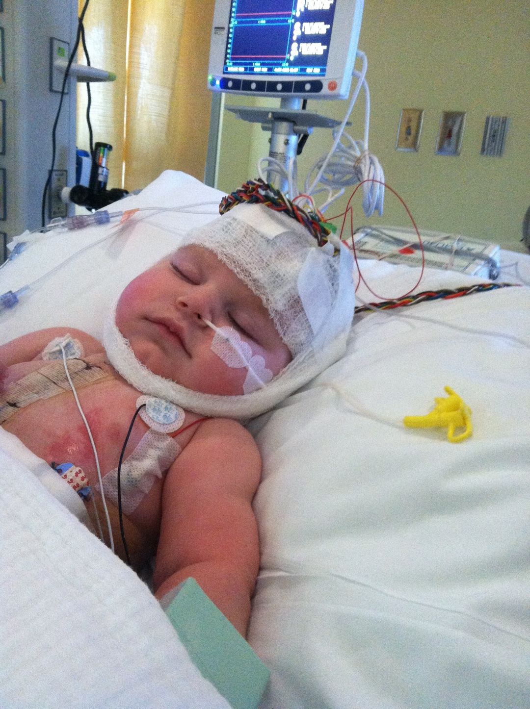 Silas in Bed After heart transplant Procedure