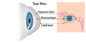 dry-eye-syndrome.jpg