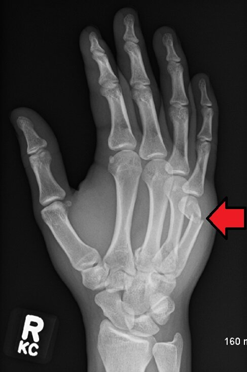 """Xray image of a fractured 5th metacarpal on a right hand, commonly known as the """"boxer's fracture"""". Photo by  James Heilman, MD"""