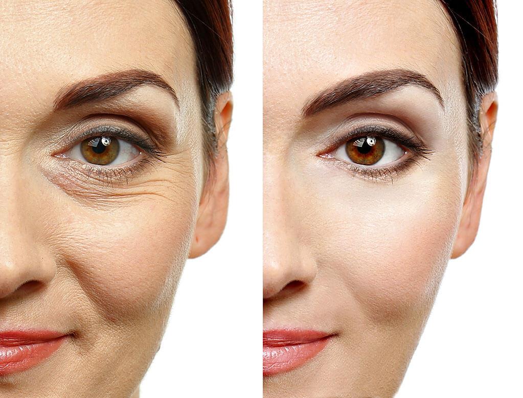 Cosmetic-Services-small-Spokane-Eye-Clinic (1).jpg