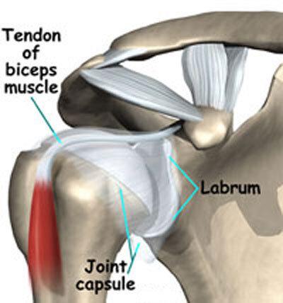 Labrum:Capsule:Biceps tendon image.jpg
