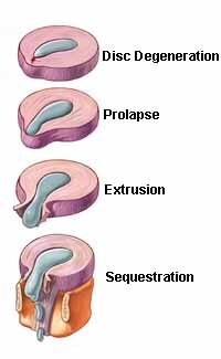 Types of herniations.jpg
